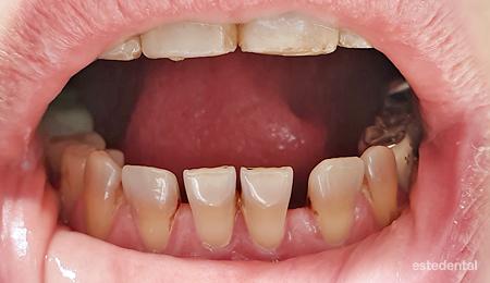 Тетрациклиново оцветяване на зъбите