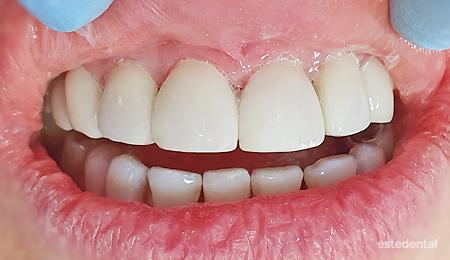 Композитни фасети без изпиляване при тетрациклиново оцветяване на зъбите