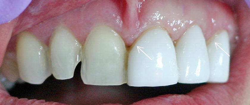 Граница между фасетата и зъба