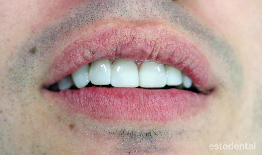 Холивудска усмивка с композитни фасети