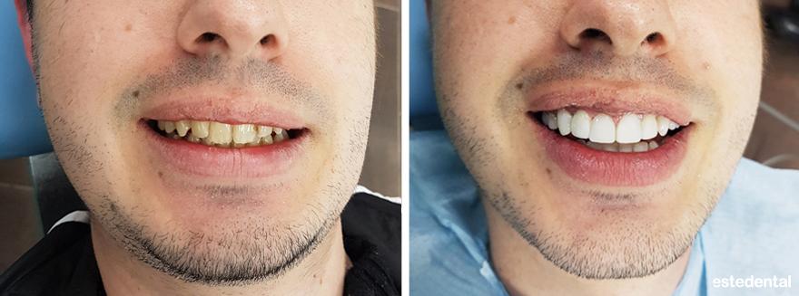 Холивудска усмивка с композитни фасети - преди и след