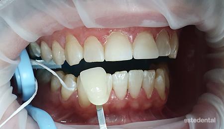 Определяне на естествения цвят на зъбите преди избелване на зъбите