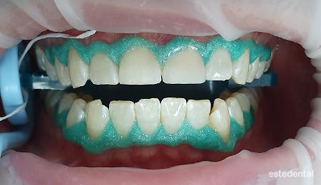Защита на венците преди избелване на зъбите