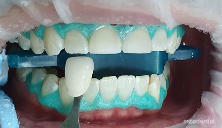 Определяне на цвета след избелване на зъбите