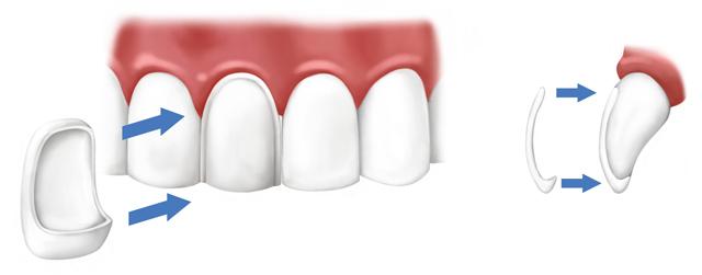 Изпиляване на зъби за фасети
