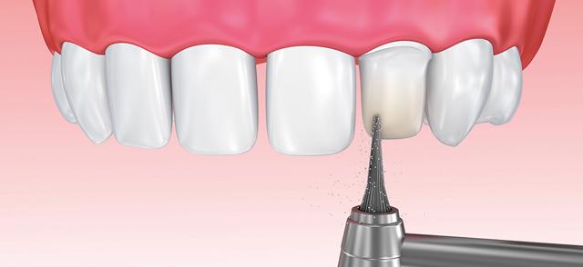 Фасети с изпиляване или фасети без изпиляване на зъбите