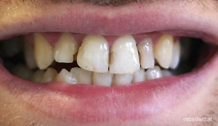 Предни зъби с множество кариеси преди поставяне на металокерамични коронки