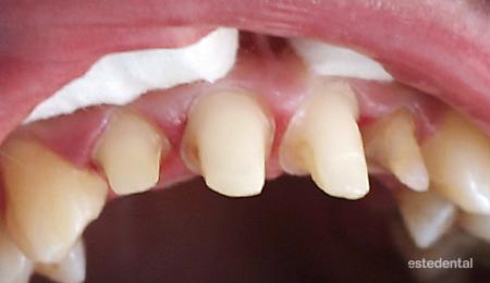 Поставяне на металокерамични коронки - прагово изпиляване на зъбите
