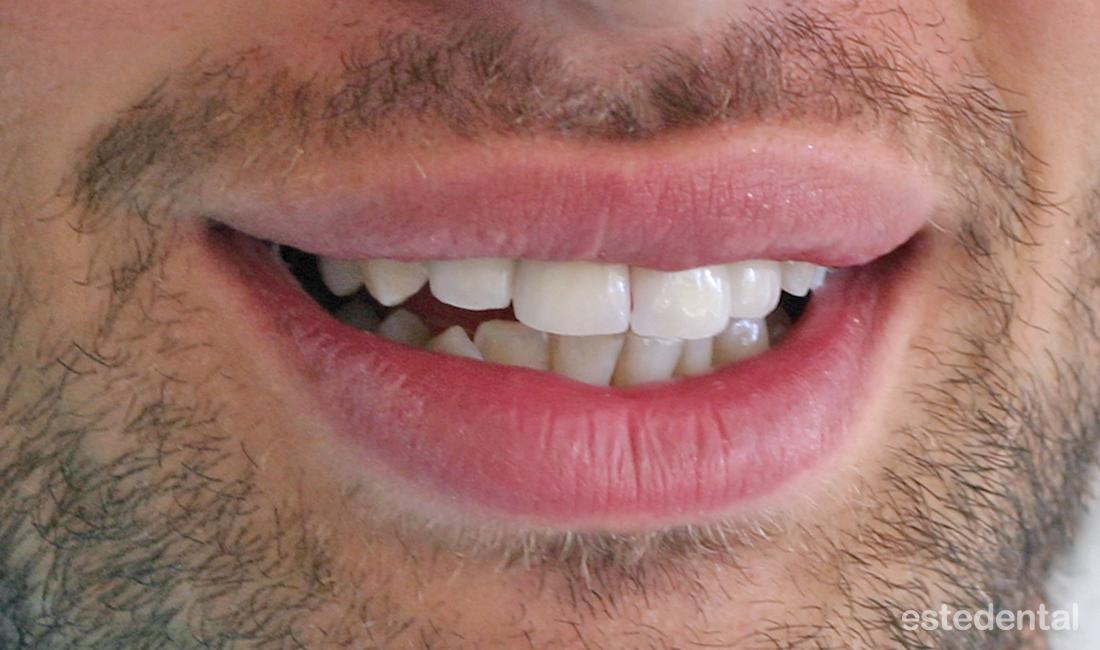 Металокерамични коронки на предни зъби - завършен вид