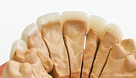 Порцеланови фасети върху работния модел