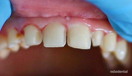 Порцеланови фасети – изпиляване на зъбите